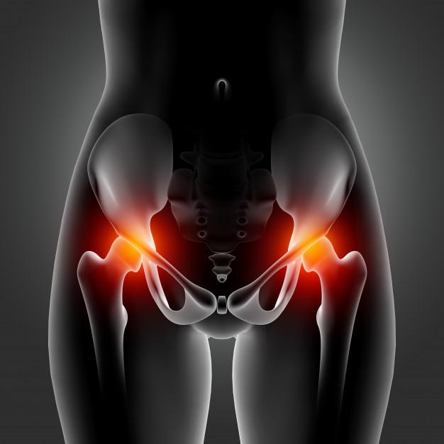 Kiropraktisk-klinik-Gunvor-Jørnsgård-Haderslev-hofte-
